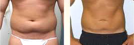 lose cellulite man stomach